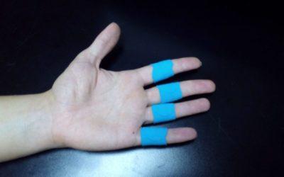 Лечение синдрома Элерса-Данлоса и мальформации Арнольда-Киари при помощи RockTape.